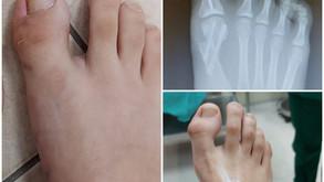 ניתוח זעיר פולשני לתיקון עיוותים שונים בכפות הרגליים.