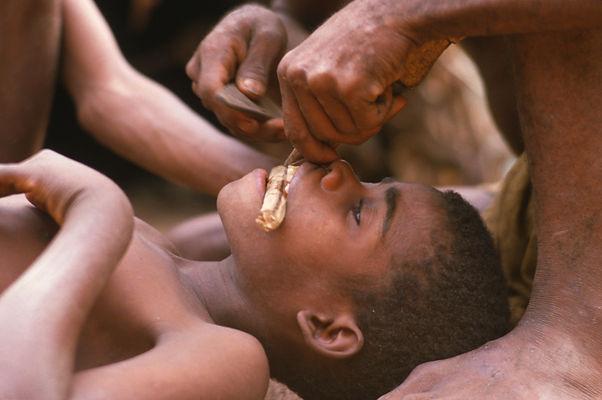 Baka People of the Rainforest, Baka teeth