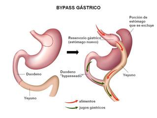 ¿Por qué el Bypass Gástrico es considerado el método de referencia en procedimientos bariátricos?