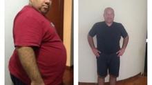 ¿Qué beneficios puede obtener una persona con obesidad al someterse a un procedimiento bariátrico?