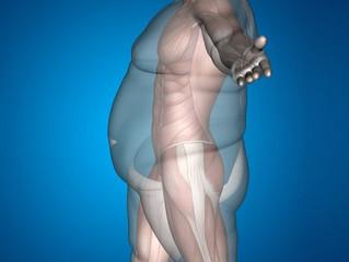 ¿La cirugía bariátrica reduce el riesgo de enfermedades cardiovasculares?
