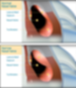 Narrow nasal valve.png