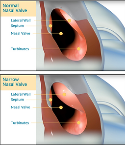 Narrow nasal valve.png