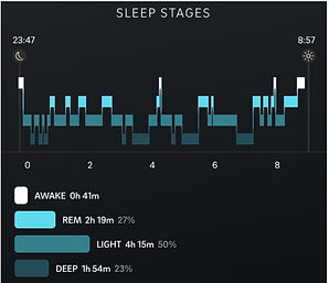 Sleep stages good rem.png