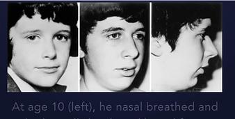 respirazione orale cambiamenti.png