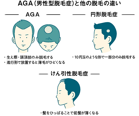 AGAと他の脱毛の違い