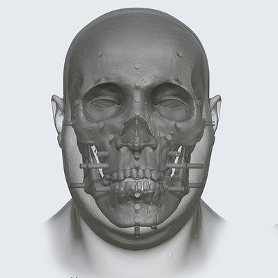 Facial Aproximation