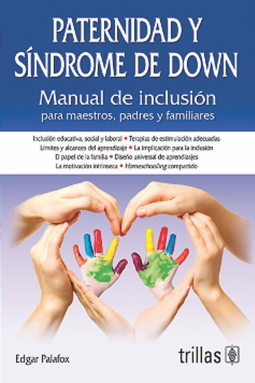 Paternidad y Síndrome de Down, por Edgar Palafox