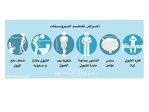 اعراض تضخم البروستات