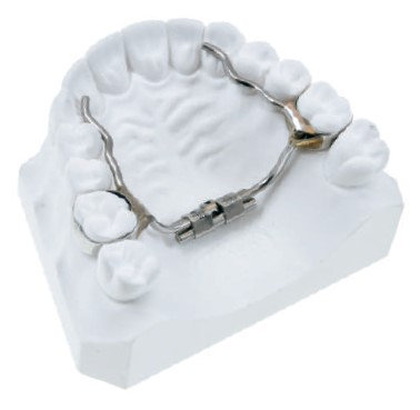 Leone MICRO EXPANDER FOR PALATAL SUTURE EASY ACCESS