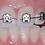 Thumbnail: F1000 Self ligating brackets