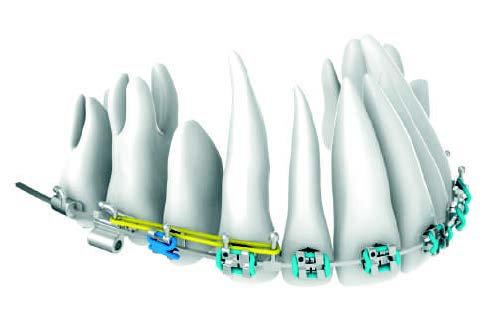 Hybrid HSDC® system