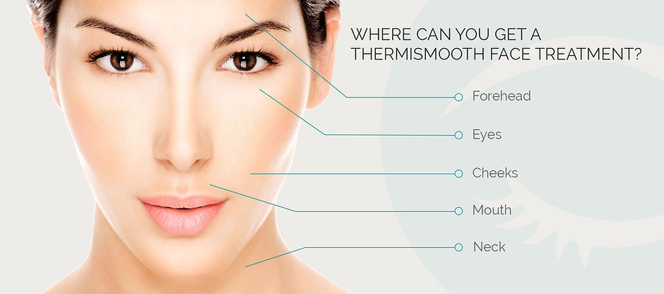 Where can I get ThermiSmooth.  ThermiSmooth is a non-invasive collage building tool.