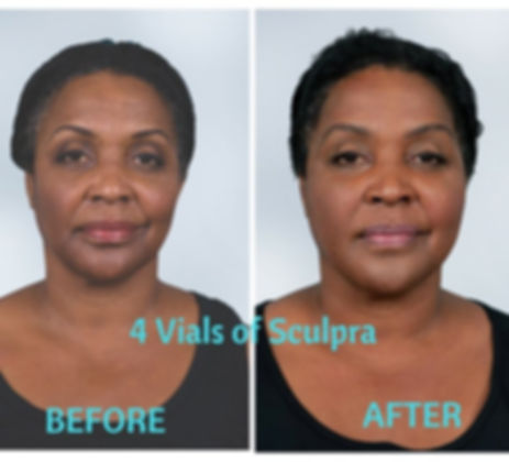 Sculptra Before and After Rocky RIver, Ohio