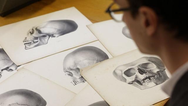 Crania Americana -  The History of Scientific Racism