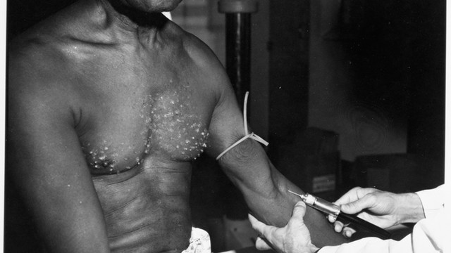 Tuskegee and the Health of Black Men