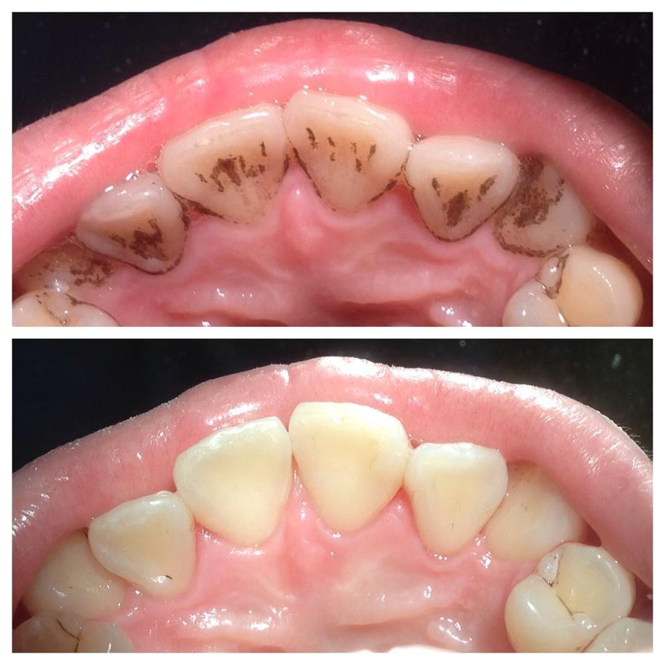 Dental Exam, Xrays & Basic Cleaning