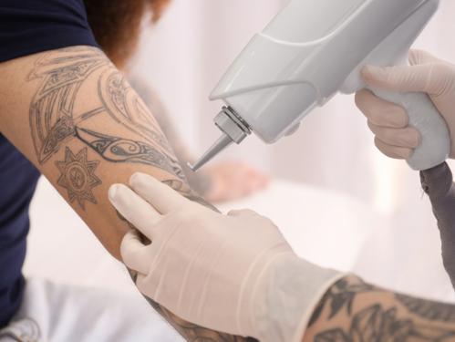 Eliminación de Tatuajes con Laser Q-Switch: De que se trata esta técnica de remoción