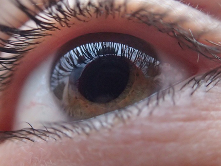 CBD Oil as a Natural Remedy for Glaucoma – A Not So Good News!