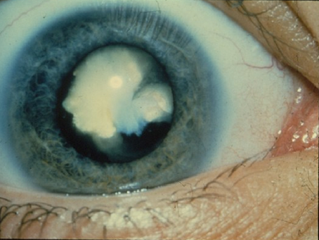 Cataracts: Who's at Risk and Why