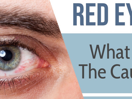 Red Eyes - What are the causes?