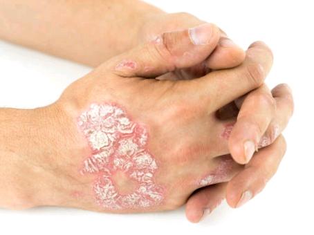 Soulager le psoriasis avec la naturopathie