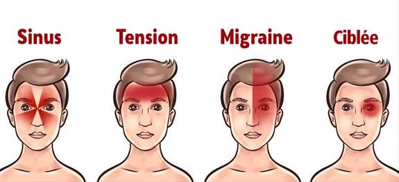 les différents type de maux de tête