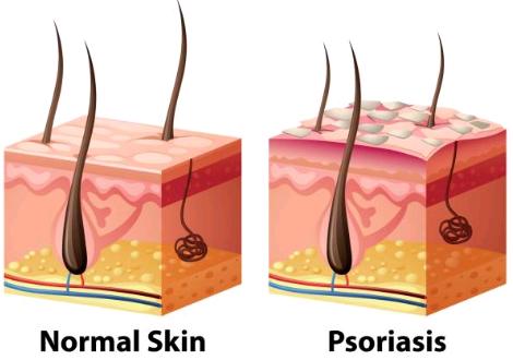Qu'est ce que le psoriasis ?