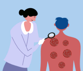 10 remèdes naturels pour soulager le psoriasis