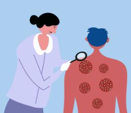 Psoriasis : 10 remèdes naturels pour le soulager