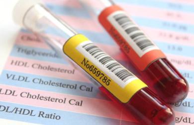 L'huile essentielle d'hélichryse italienne contre l'hypercholestérolémie
