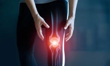 Accompagner l'arthrose avec la Naturopathie