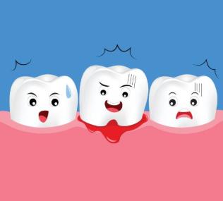 Problèmes bucco dentaires