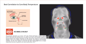 4R's Core temperature sensing