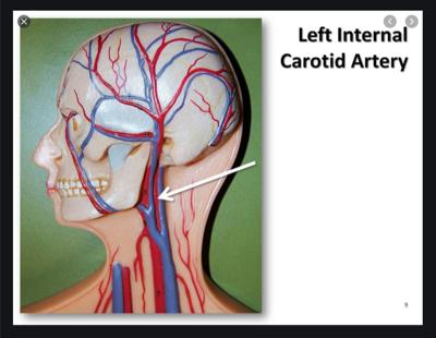 Vgreet Covid-19 Carotid Artery core temperature reading, Communication Edge