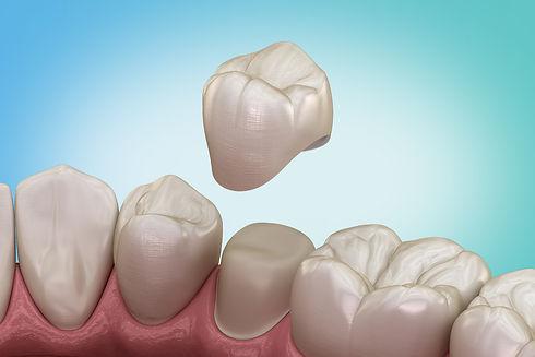 GS_Dental_Crowns.jpg