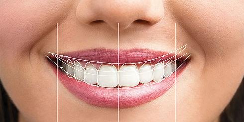 Digital Smile Design - Given Smile