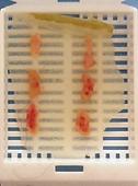 慢性腸症 内視鏡 生検