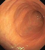 慢性腸症 内視鏡