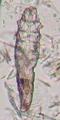 毛包虫 ニキビダニ