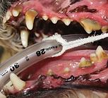 歯石3.PNG