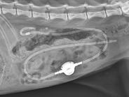 尿管結石2.PNG