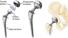 Artroplastia total de quadril - Parte 2