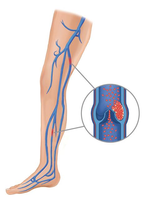 coágulos sanguíenos na perna