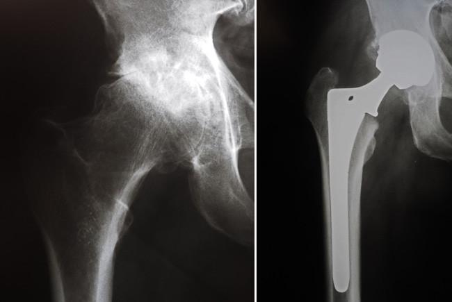 Antes e depois da artroplastia total de quadril