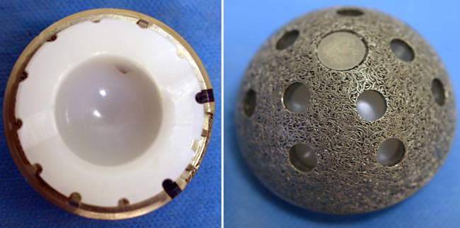 Componente Acebular
