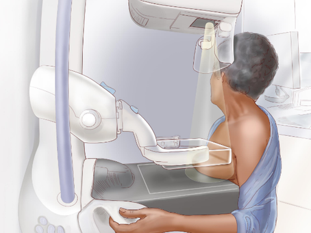 Preparing for your mammogram
