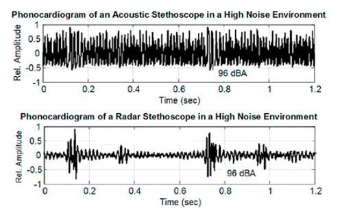 Phonocardiogram-chart.png