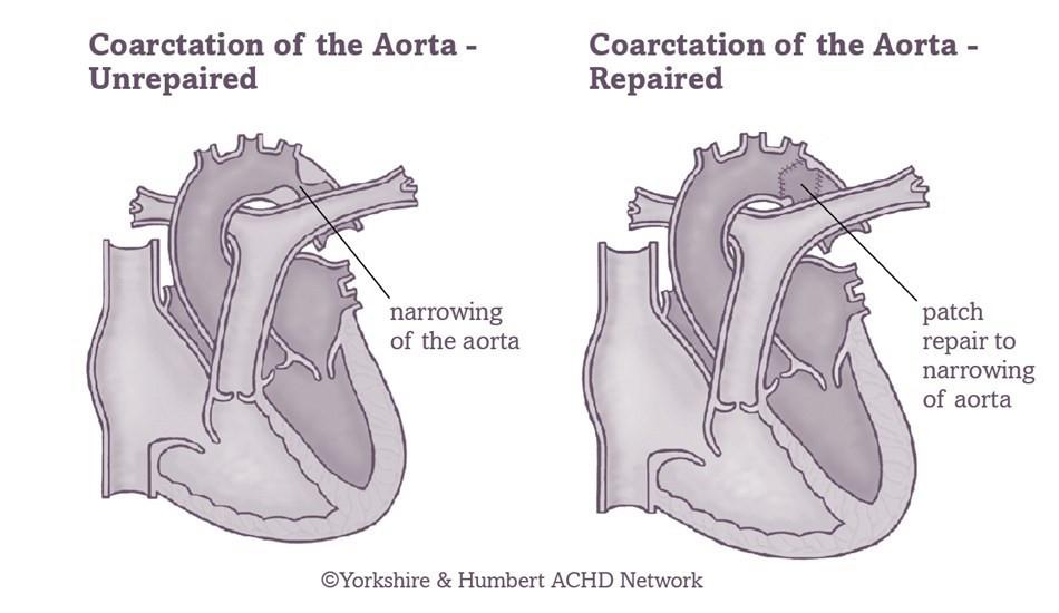 coarctation-of-the-aorta