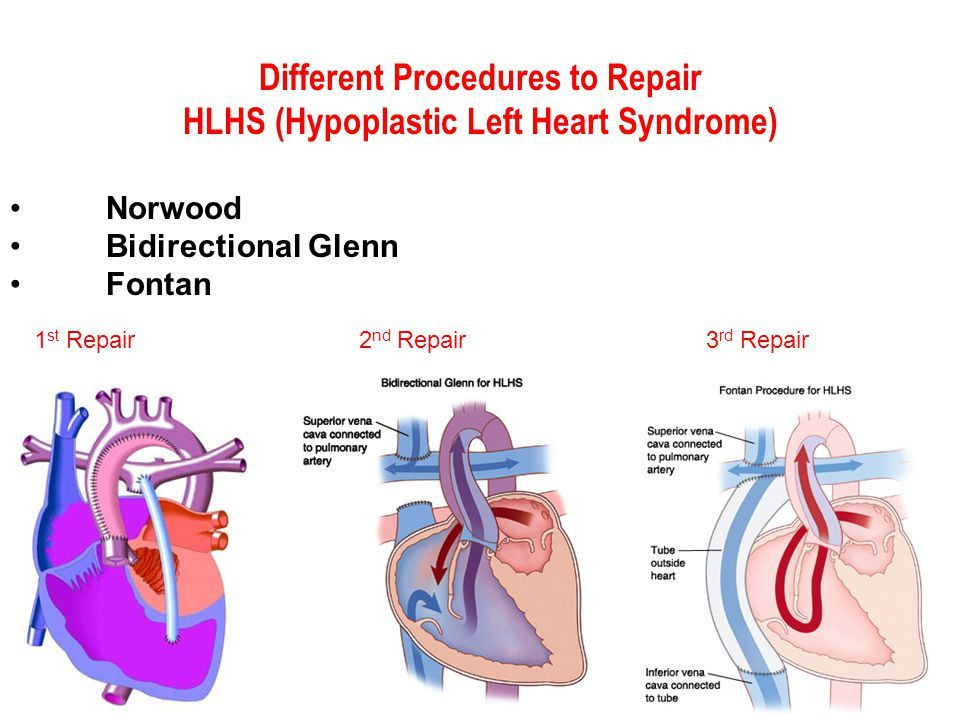 Different+Procedures+to+Repair+HLHS+(Hypoplastic+Left+Heart+Syndrome)